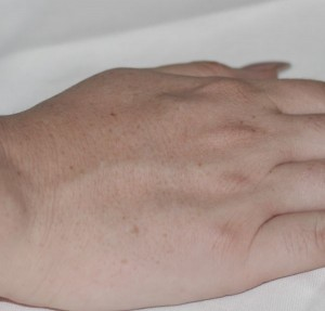right hand no microdermabrasion